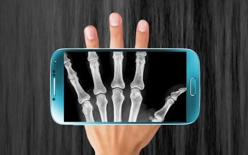 X-Ray Сканер для Андроид